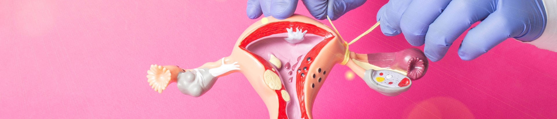 Photo of a hand tying a model uterus with string